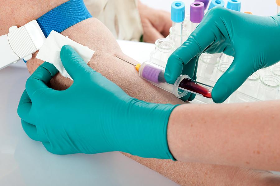 забор крови на цитомегаловирус
