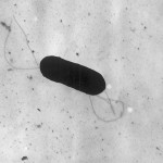 Electron micrograph of a flagellated Listeria monocytogenes bacterium, Magnified 41,250 times. Listeria monocytogenes is the infectious agent responsible for the food borne illness Listeriosis.