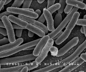 Escherichia coli (E. Coli) bacteria image from  National Institutes of Health, which is part of the United States Department of Health and Human Services.